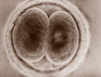 Undfangelse-01-06-Det-esoteriske-grundlag-for-hormonale-valg
